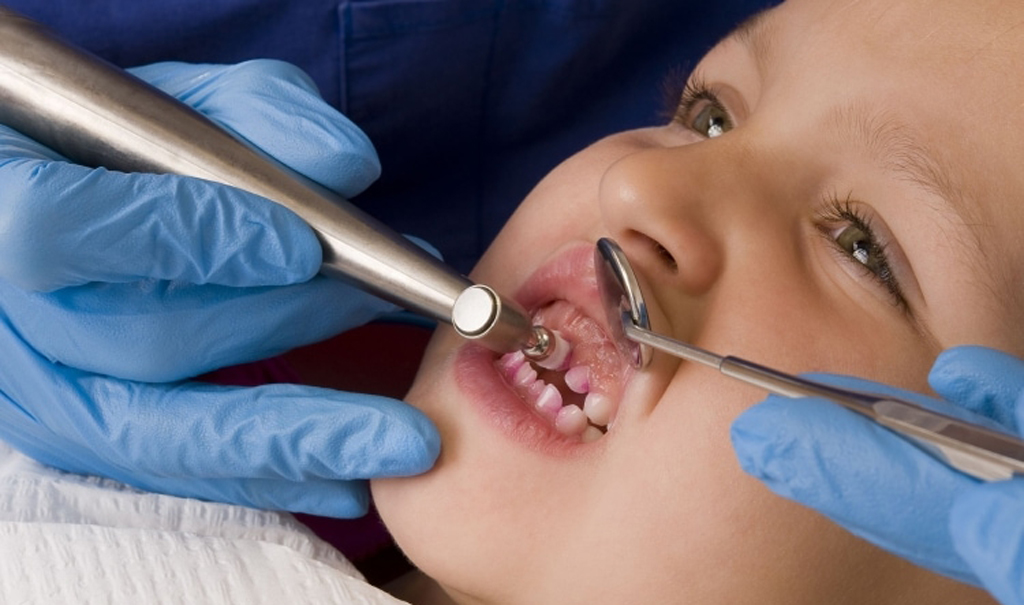 В детском возрасте позволяется только бережная чистка зубов