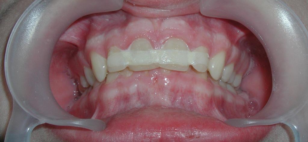 При небольшом вывихе, зубы может спасти шинирование