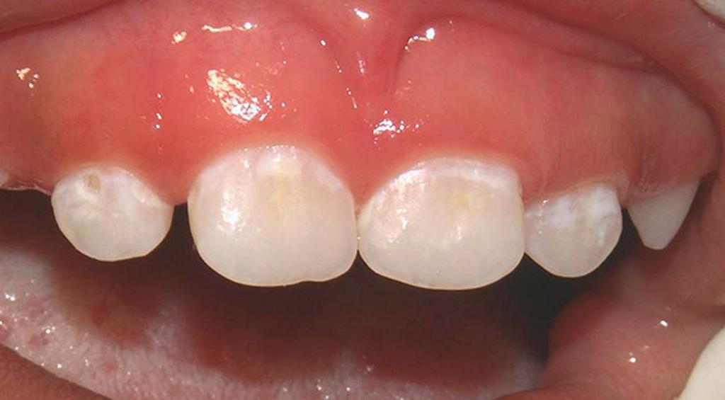 Агрессивное отбеливание может привести к истончению и деминерализации эмали
