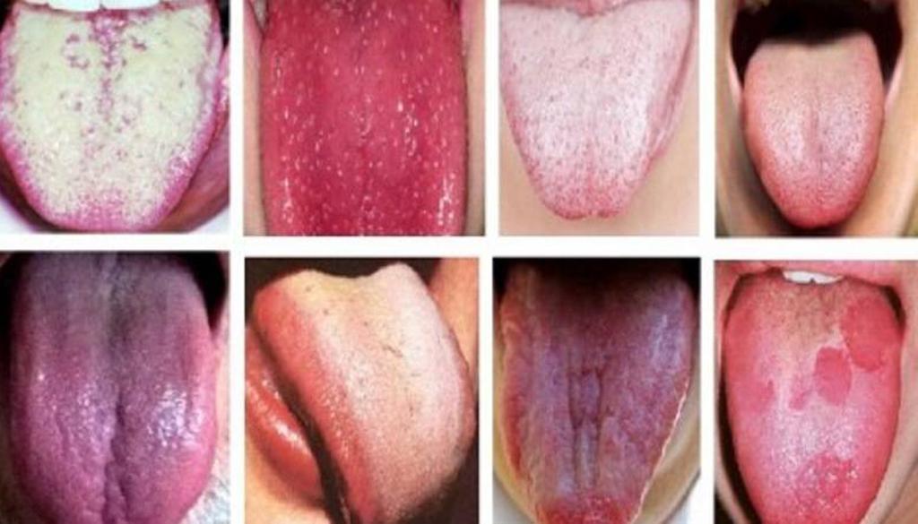 Налет на языке может быть разнообразным