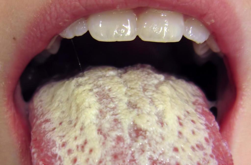 Причины и лечение жжения во рту и на языке