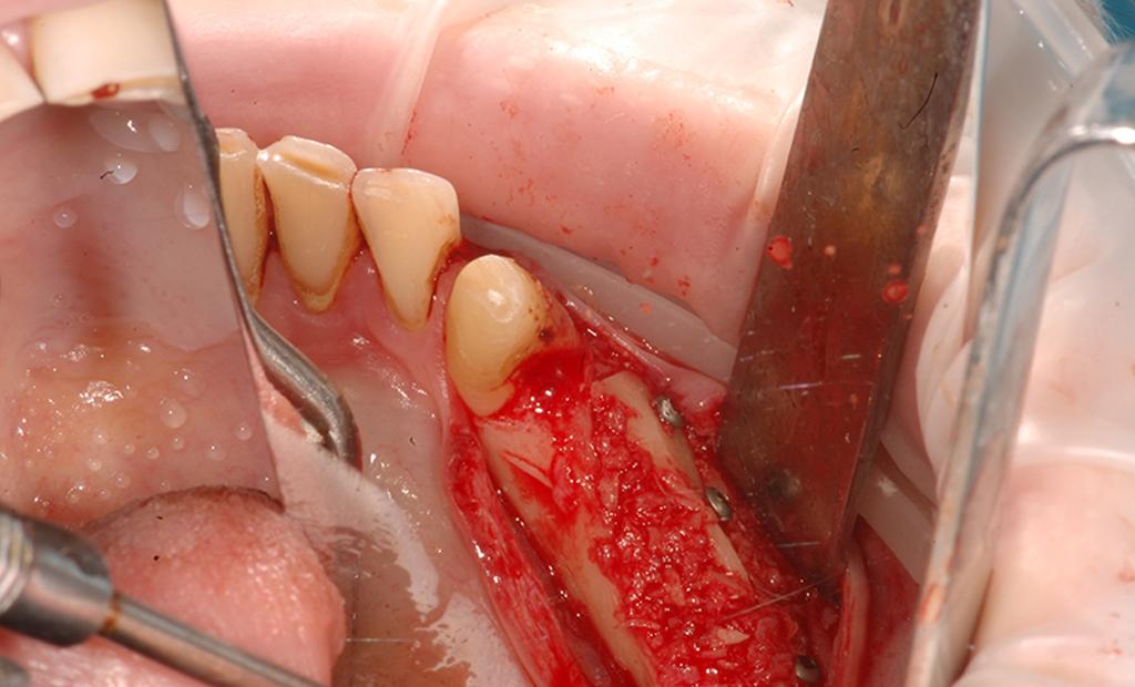 Наращивание костной ткани при имплантации зубов, как происходит пластика десен при зубной операции, как ставят имплант на кость