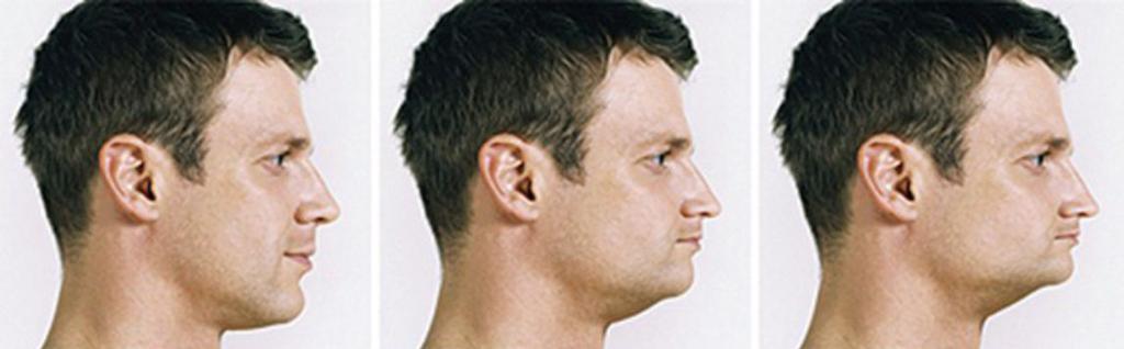 При долгом отсутствии зубов изменяется форма лица