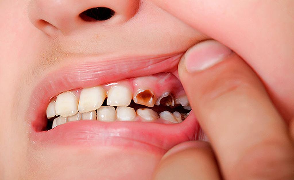Кариес может быть причиной подвижности зуба
