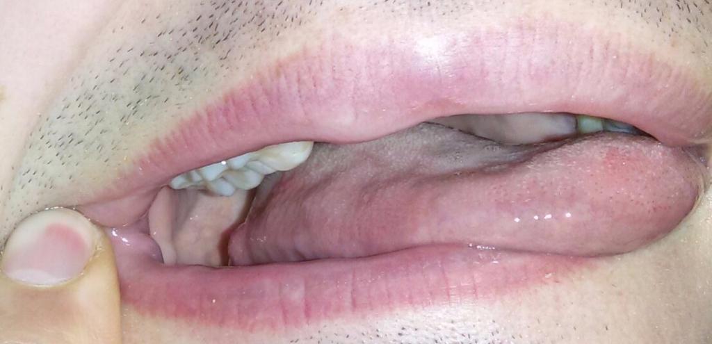 Боль со стороны жевательных зубов может быть вызвана различными факторами