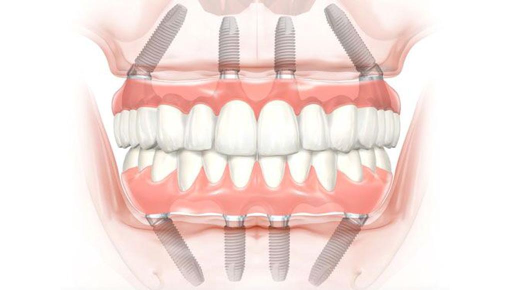 Сколько стоит имплантация зубов за 1 день