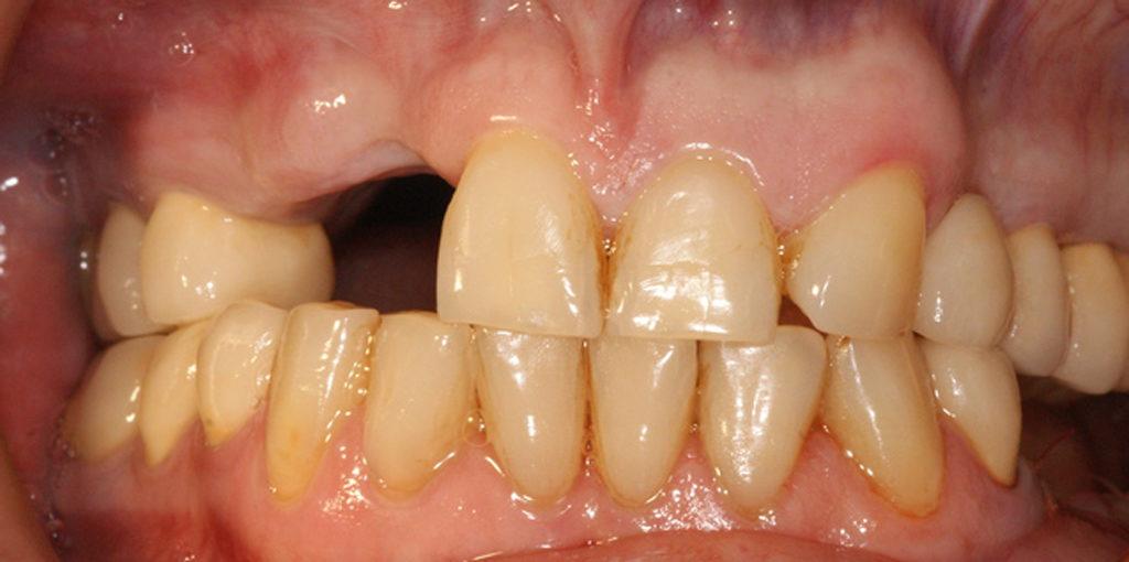 Отсутствие зуба может привести к неправильному прикусу