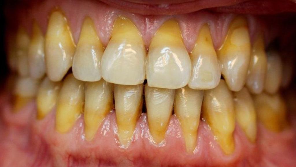 Зубы возле корней становятся более темными