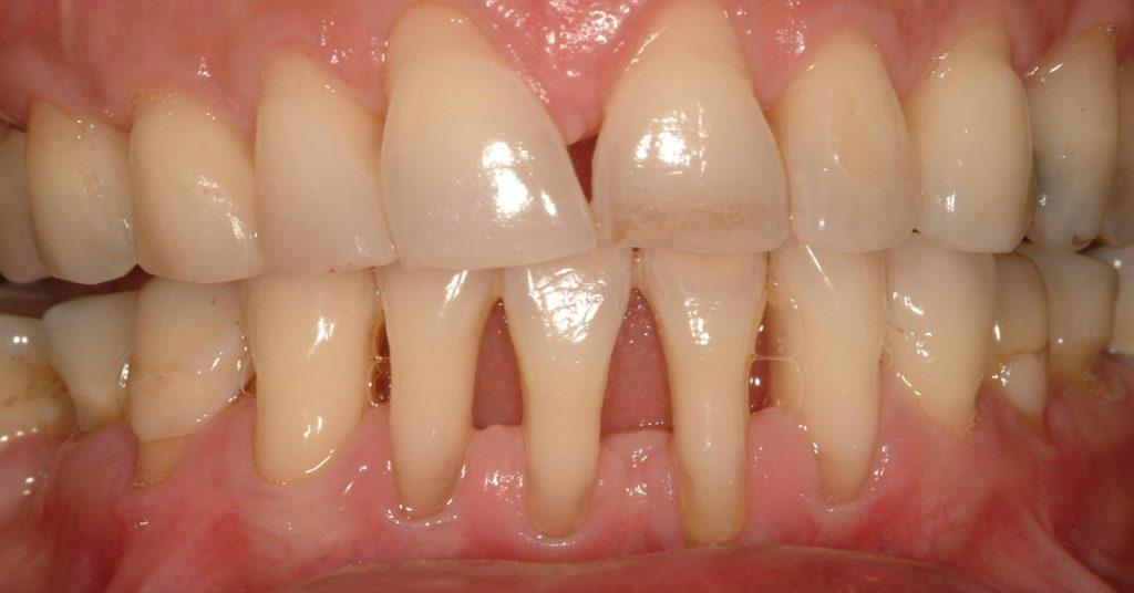 Оголяются корни зубов — что делать и как лечить