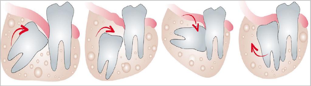 Ретинированный зуб может расти в различных направлениях