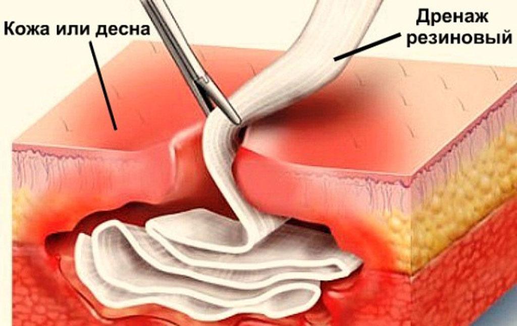 Дренаж довольно часто используется в стоматологии