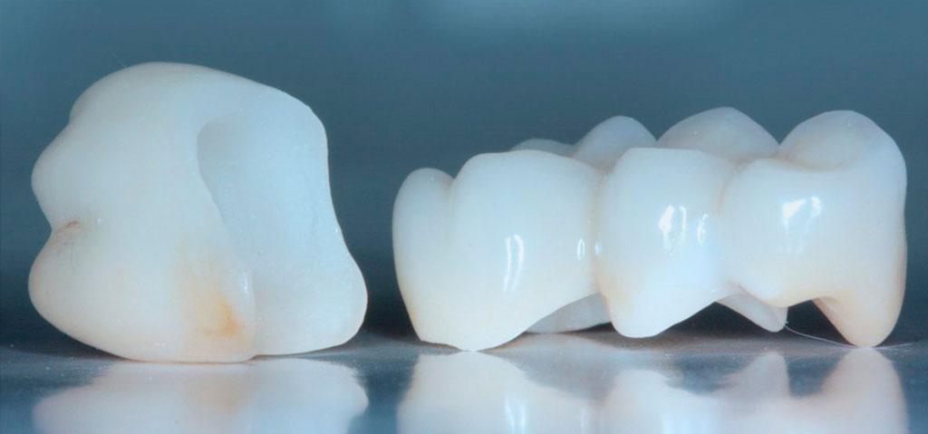 Коронка поможет сохранить зуб