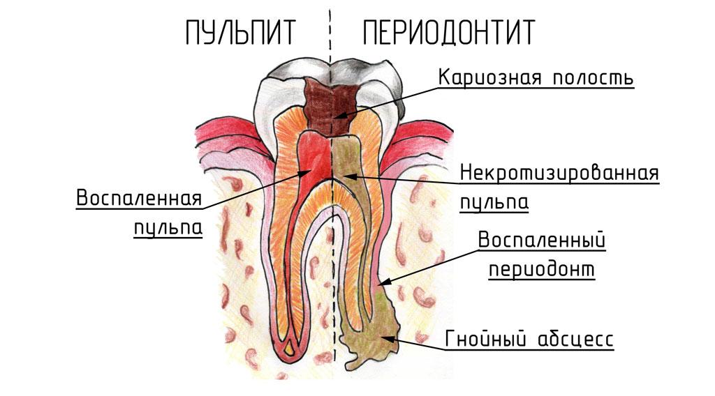 периодонтита