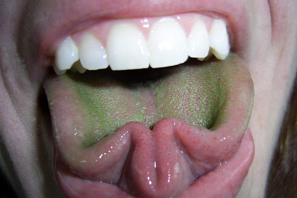 Зеленый налет на языке: причины появления и лечение
