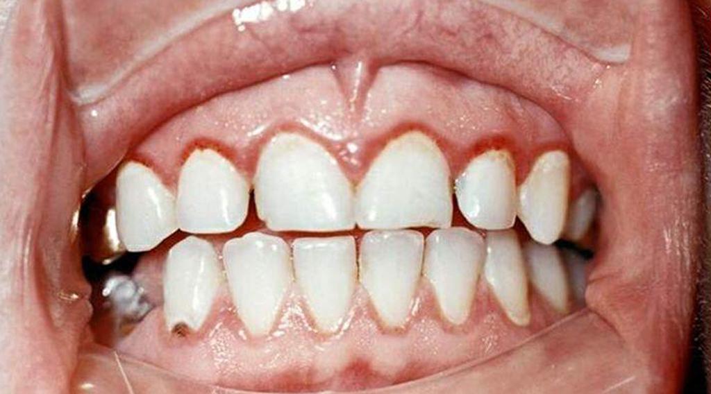 Что такое катаральный гингивит и как его лечить