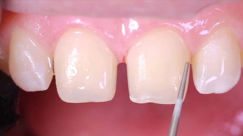 При данной процедуре зубы не подвергаются сильному травмированию