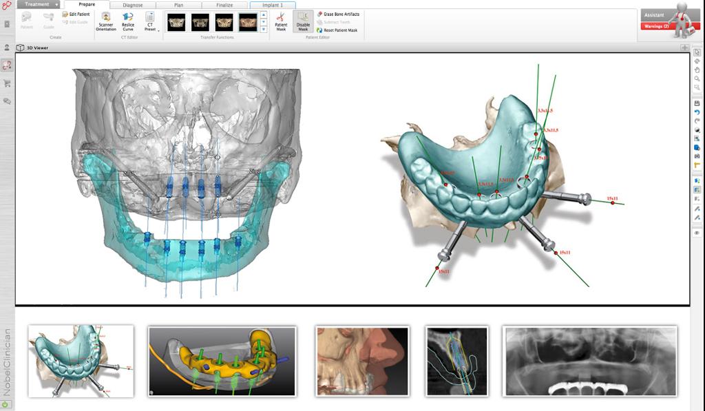 3D-диагностика