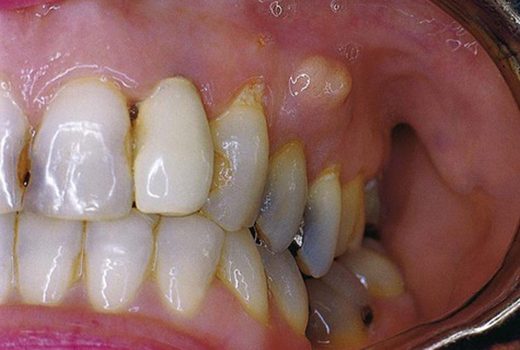Абсцесс зуба лечение в домашних условиях