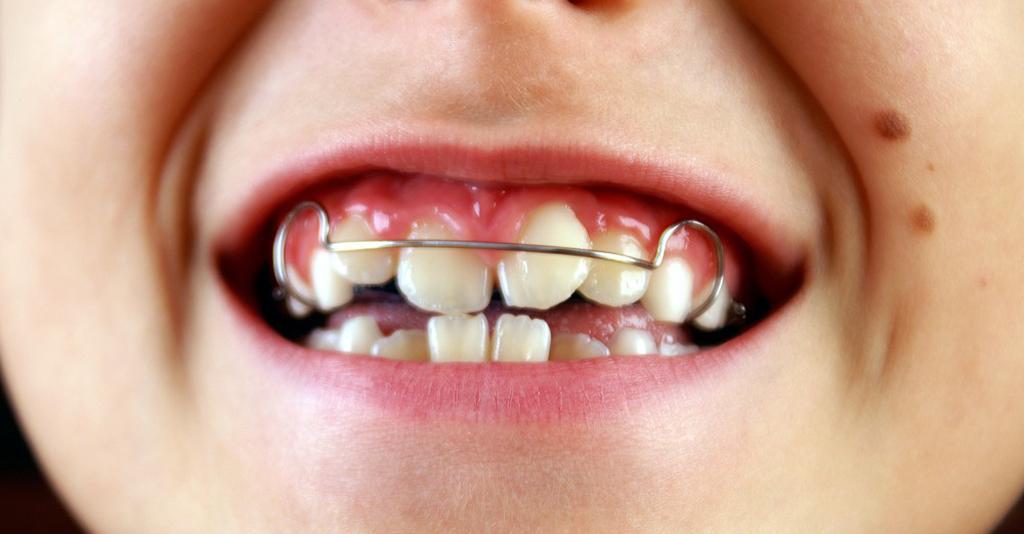 Некоторые ортопедические конструкции могут стать причиной травмы языка