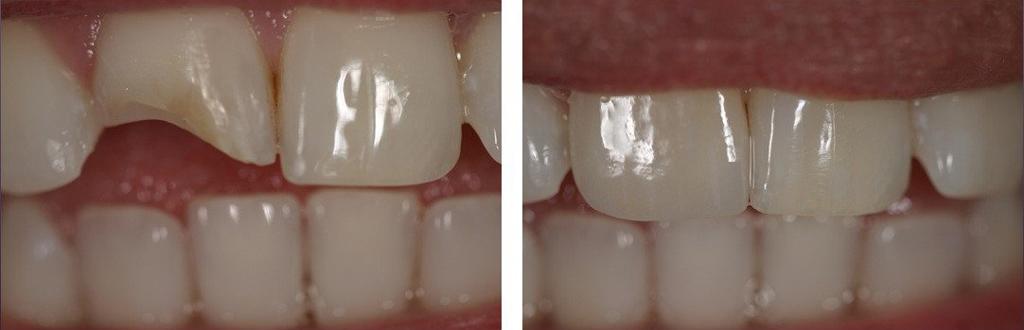 На фото показан зуб до и после установки световой пломбы