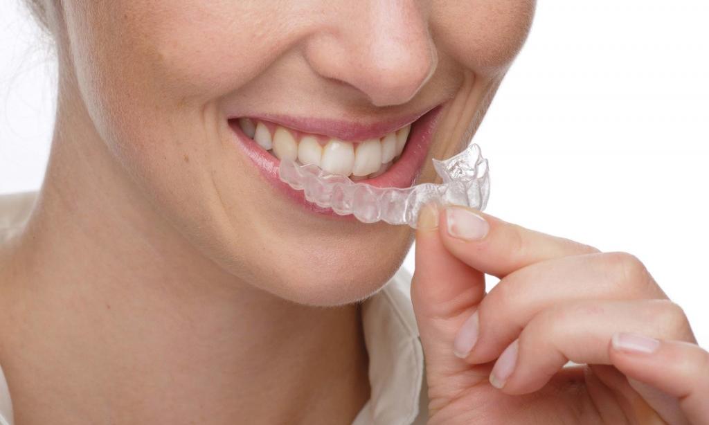 Лучшие гели для отбеливания зубов