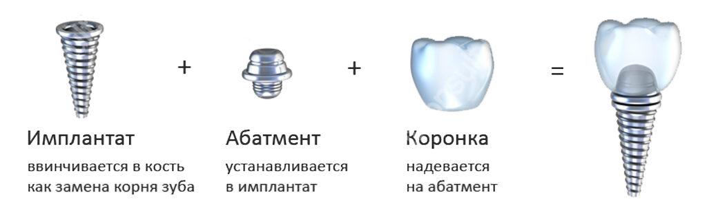 Из чего состоят имплантаты