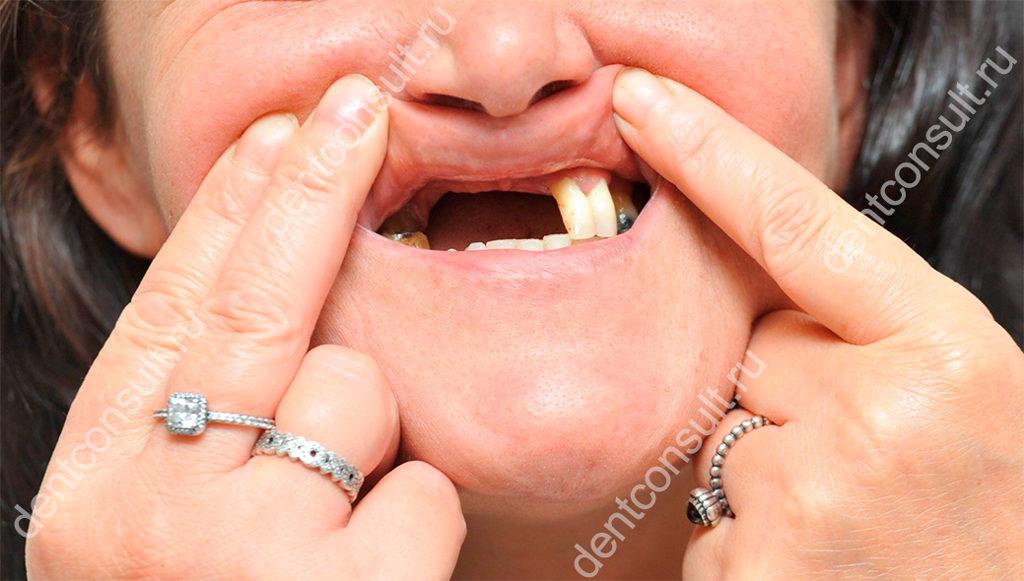 нет зубов
