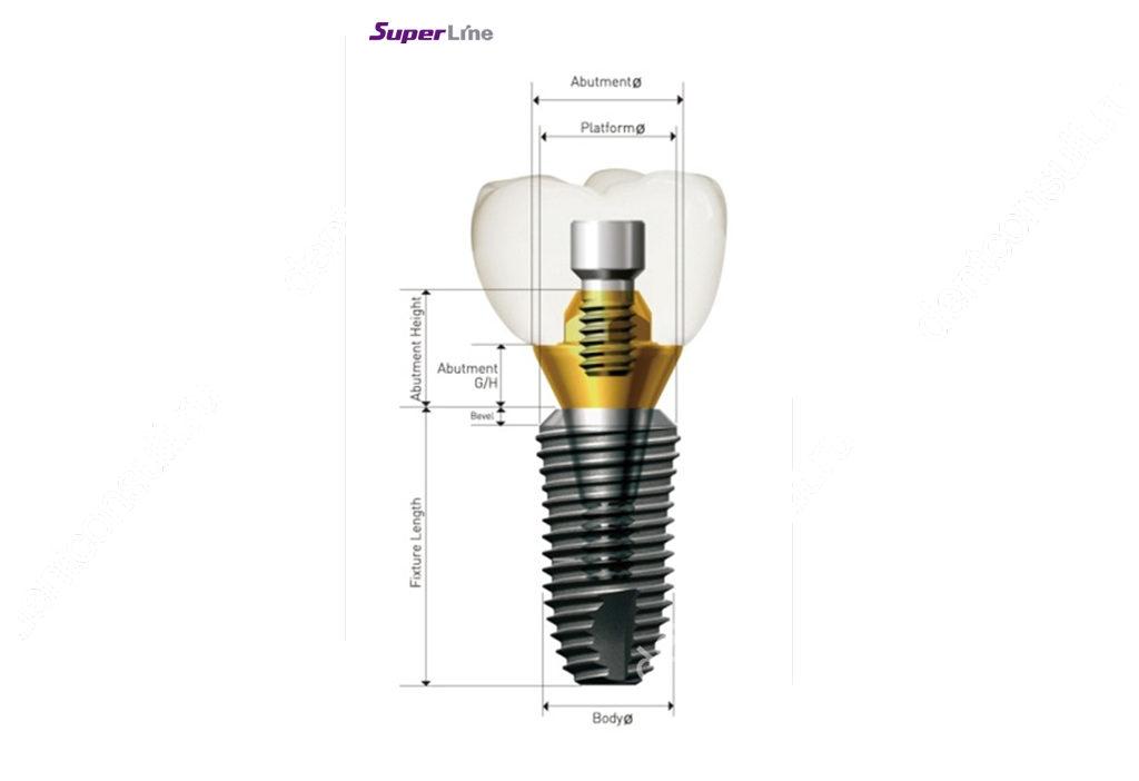 Импланты Dentium («Дентиум») – обзор бренда