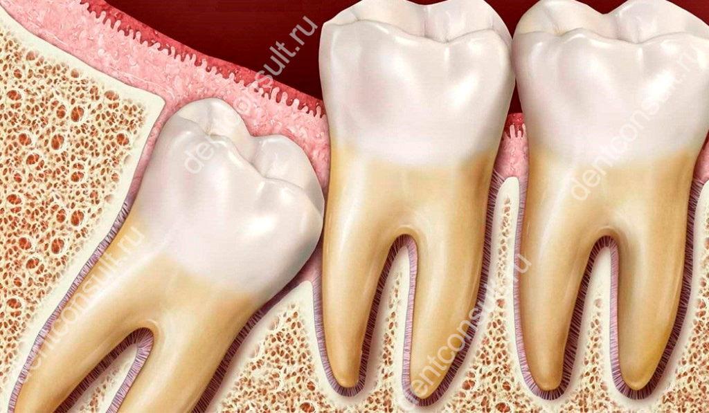 ретированный зуб