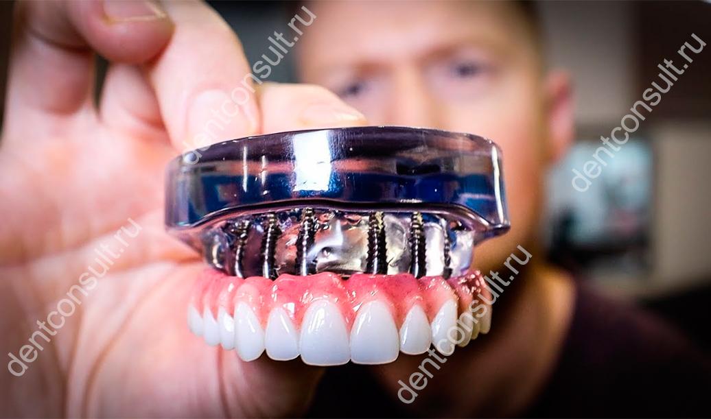Имплантация в сложных случаях или что такое Smile Re-Style