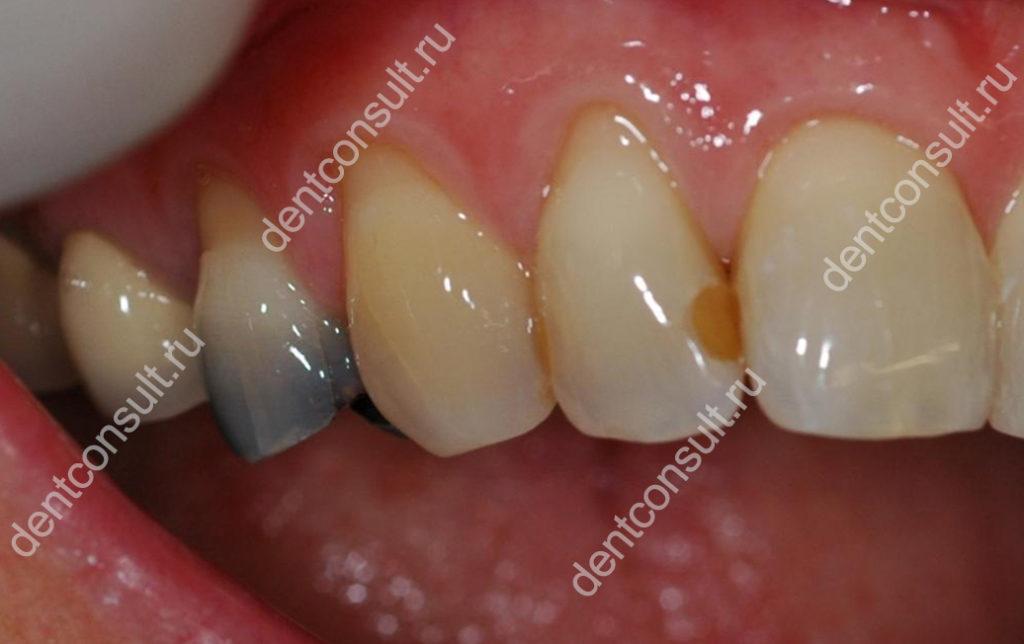черный зуб