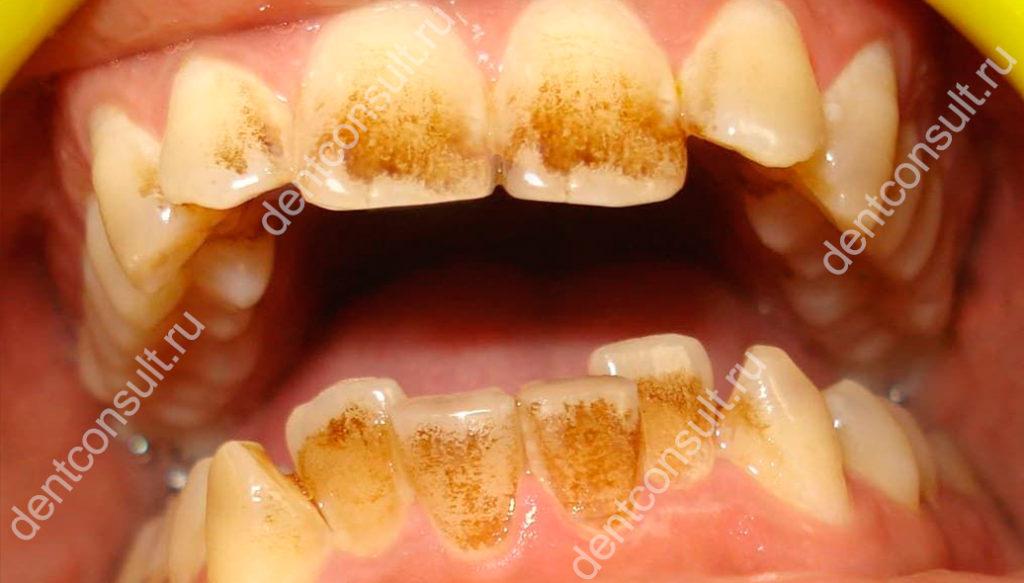зубы от никотина