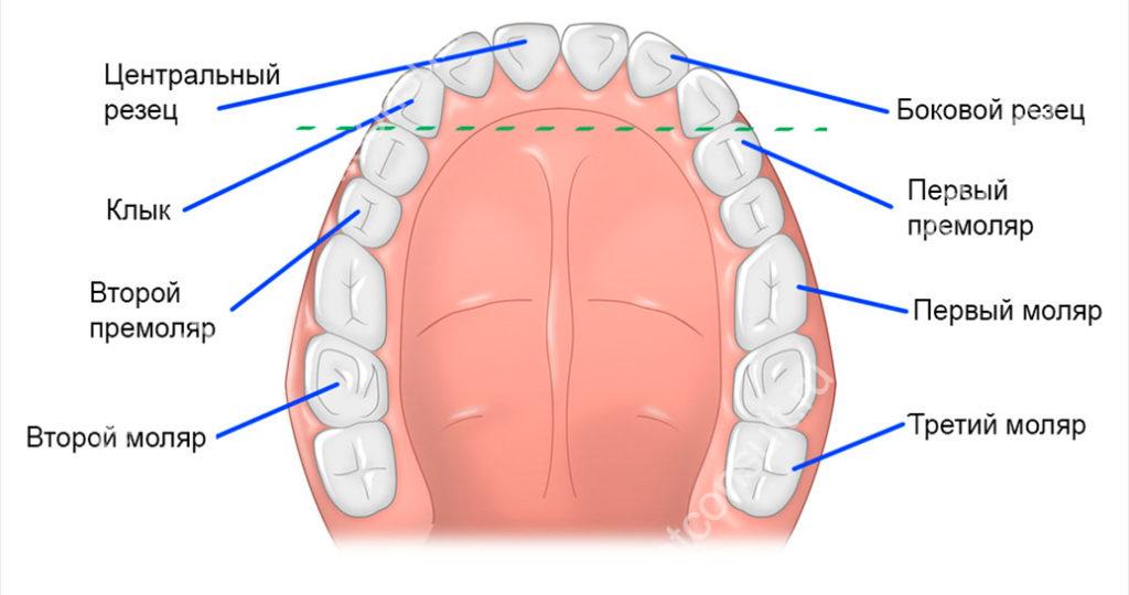 моляры на верхней челюсти