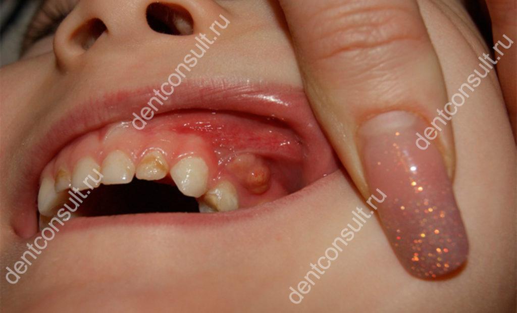 флюс на молочных зубах