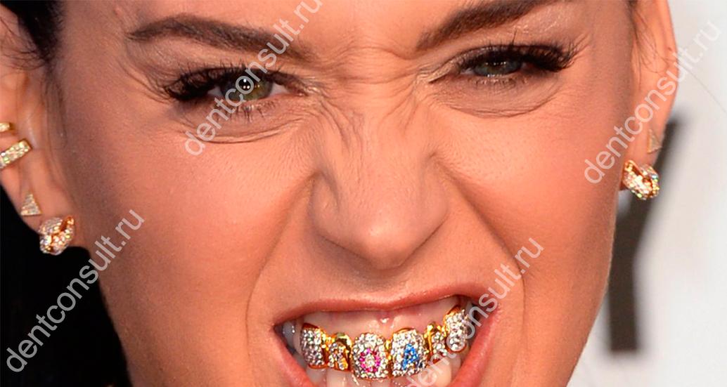 Грилзы – тренд в украшении зубов или способ получить заболевание