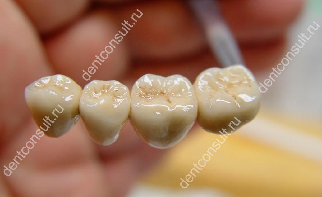 Можно ли отбелить металлокерамические зубы и зубы с пломбами