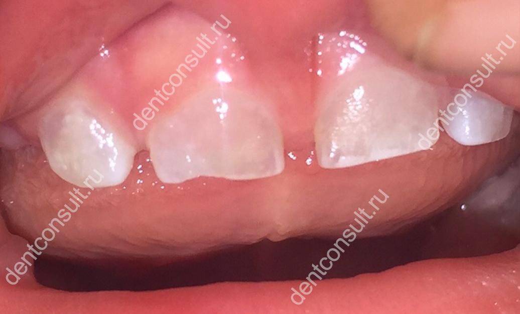 прозрачные зубы у ребенка