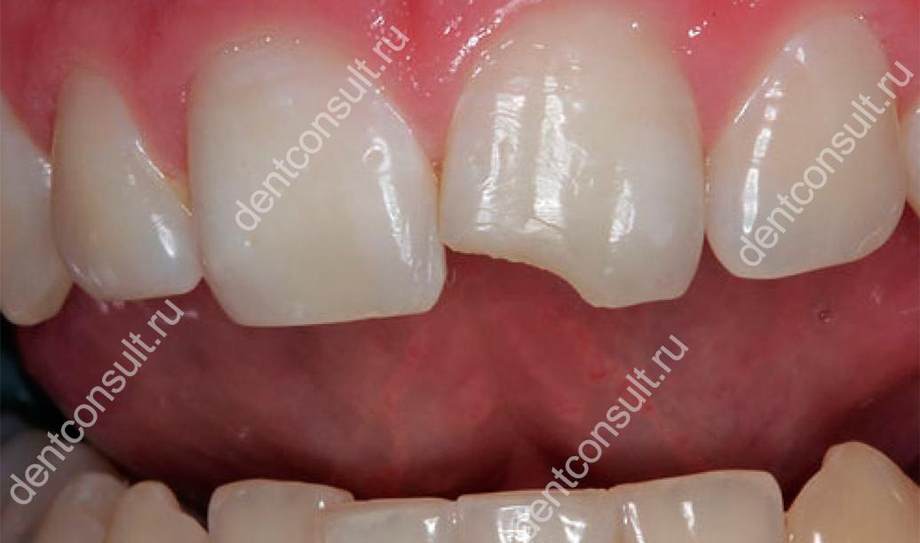 Что делать если, откололся зуб