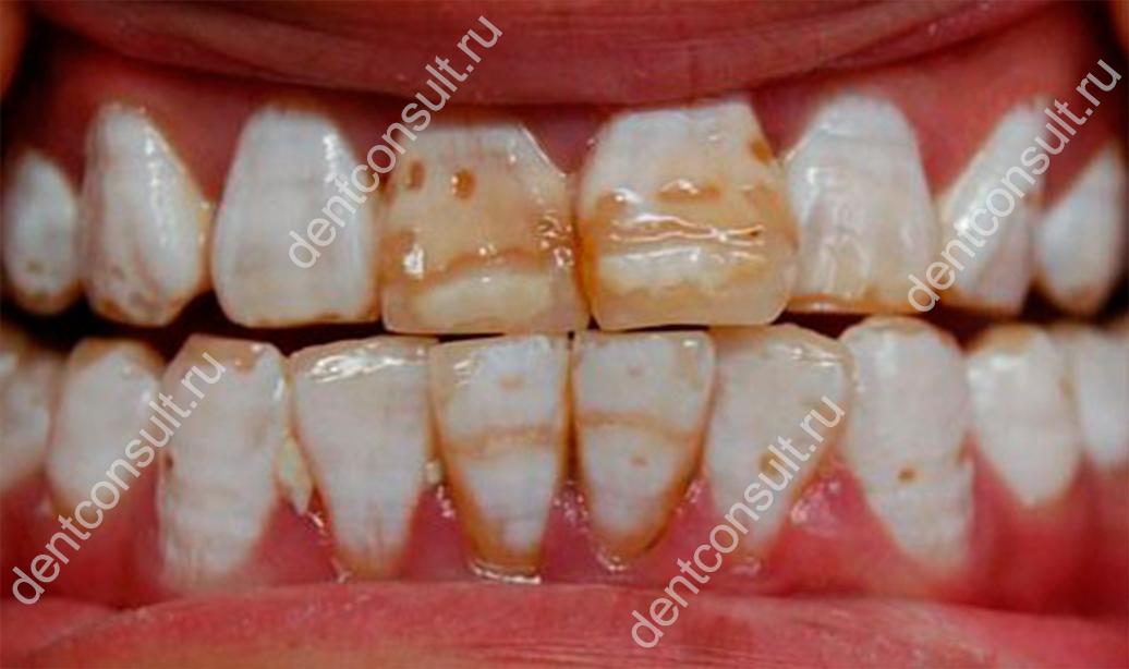 Зубы Фурнье (системная гипоплазия) – особенности развития патология и методы лечения