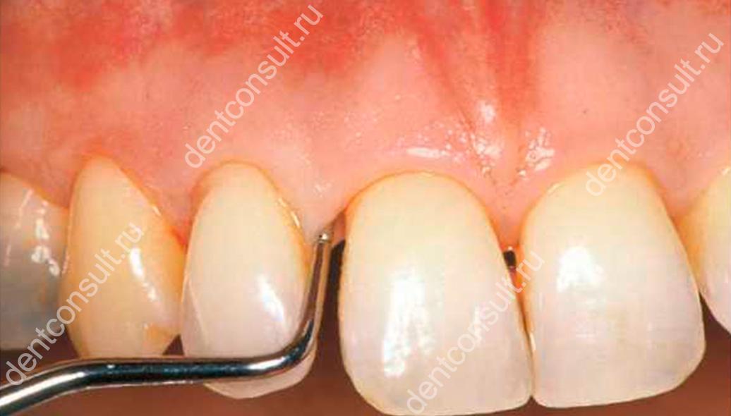Карман в десне между зубами — как лечить