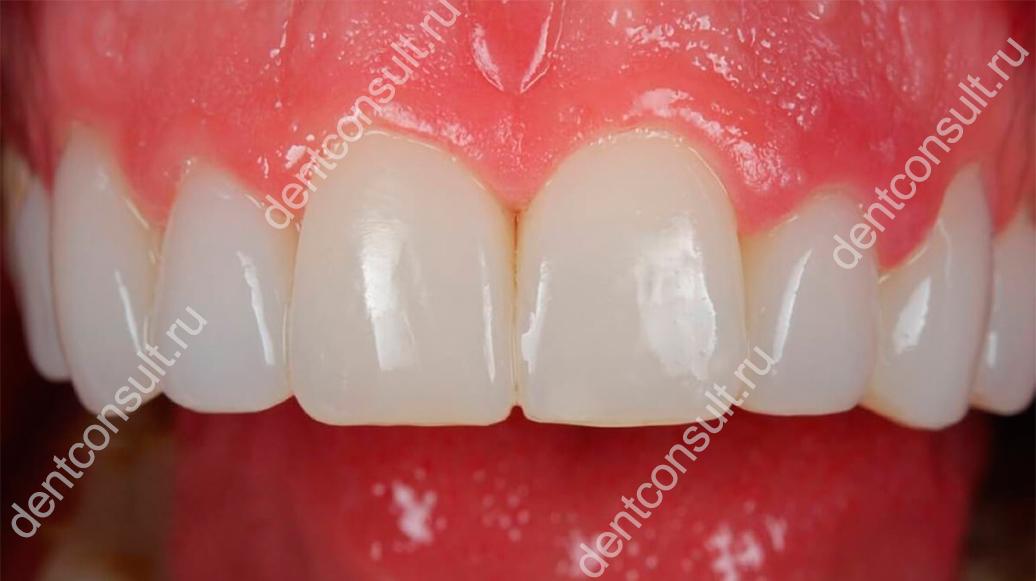компониры на зубах