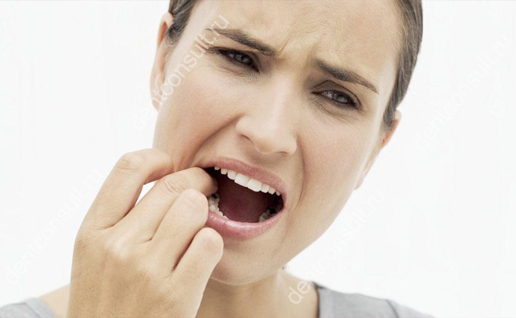 откололся зуб до десны