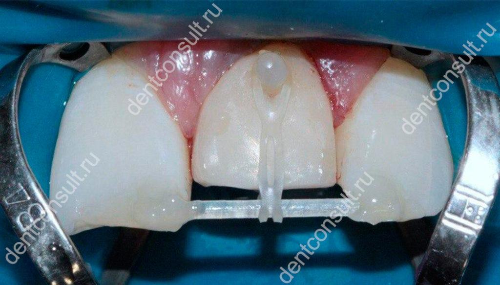 экструзия зуба