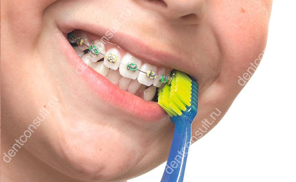 Ортодонтические щетки