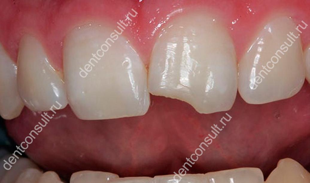 Что делать, если откололся передний зуб