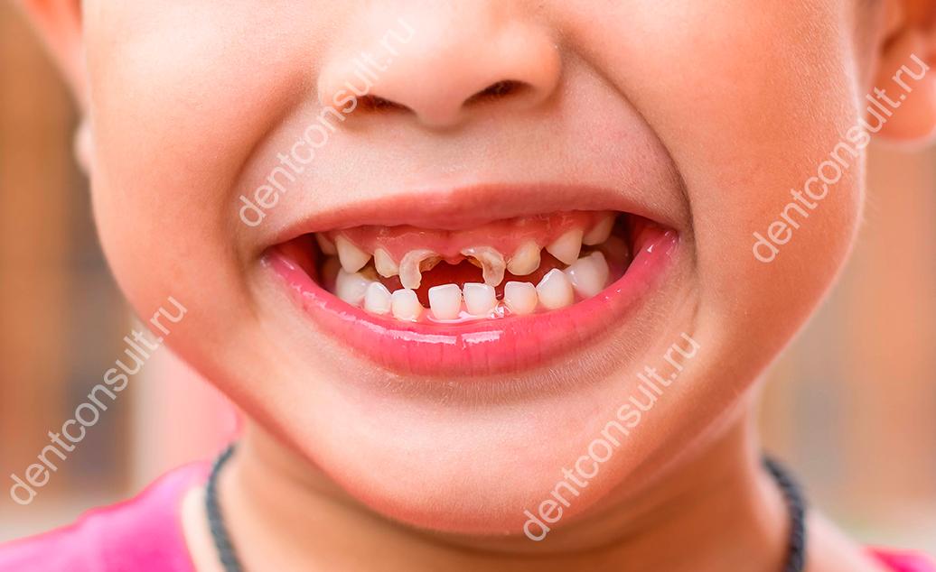 сломаны зубы