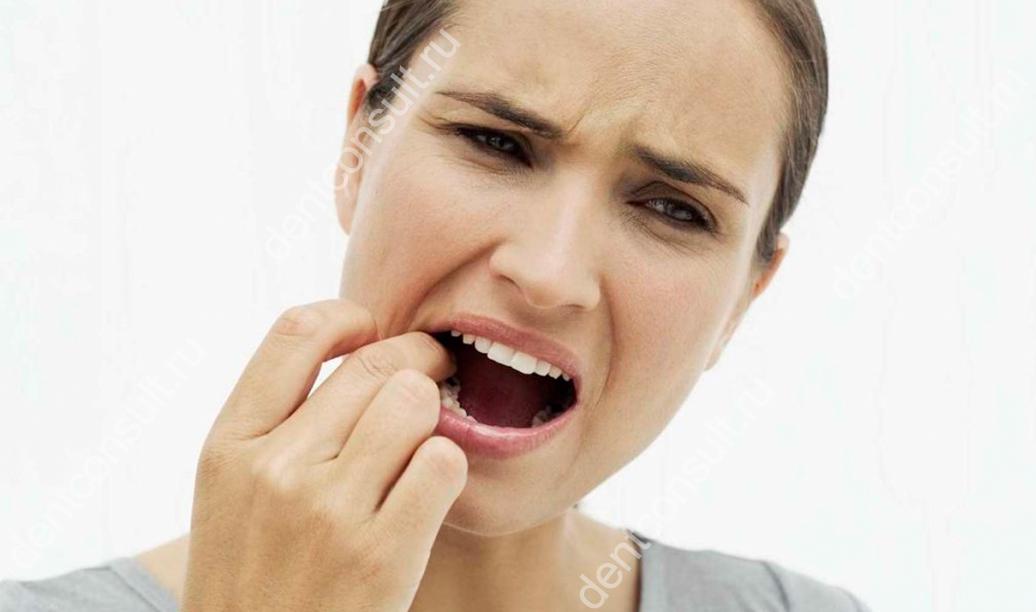 Шатаются коренные зубы, что делать