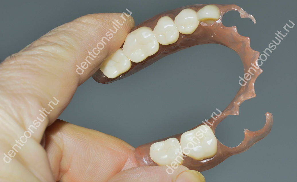 нейлоновый зубной протез