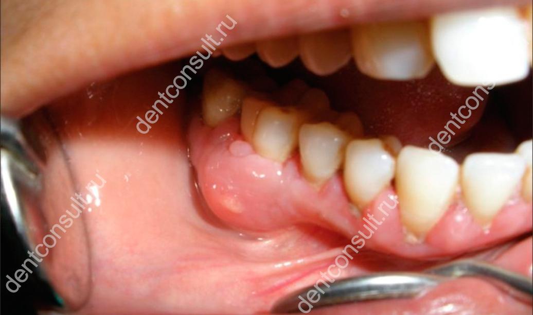 периостит зуба