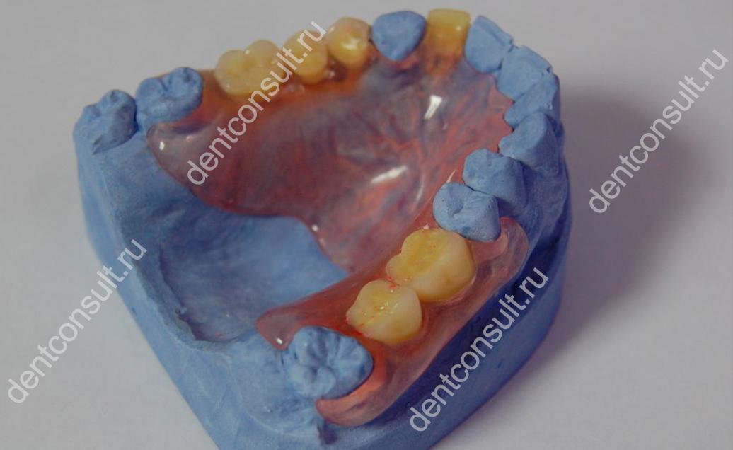 зубной протез acry free